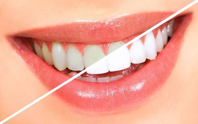 Quan tâm nhiều đến việc vệ sinh răng miệng, tẩy trắng răng trươc ngày cưới